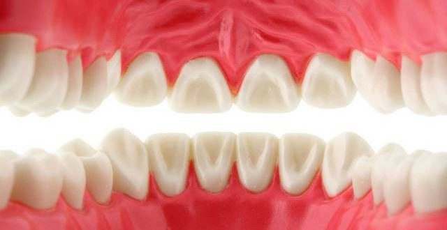 Are dentures allowed in Islam?